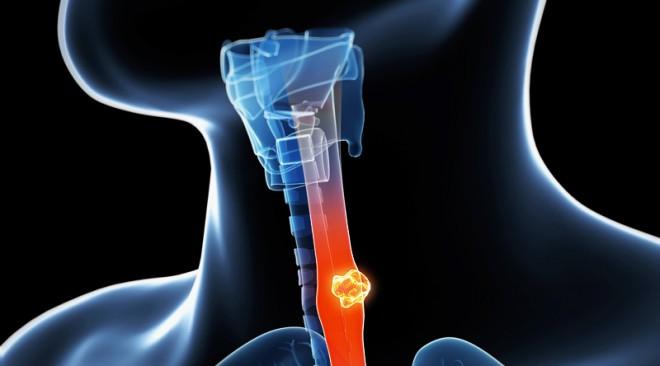 Καρκίνος οισοφάγου και καρκίνος στομάχου: Δύο στενά συνδεδεμένες παθήσεις