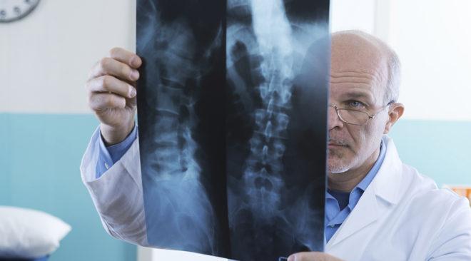 Δωρεάν ακτινογραφίες για οστεοπόρωση στα ΚΑΠΗ των 3Β